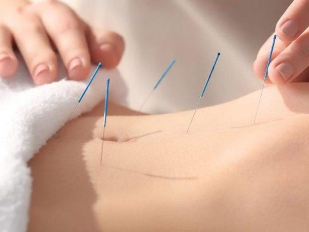 Akupunktur Tedavisi Hangi Tarihten Bu Yana Kullanılıyor